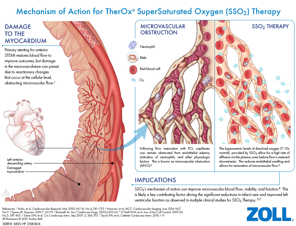 Mechanism of Action for TherOx SuperSaturated Oxygen (SSO2) Therapy