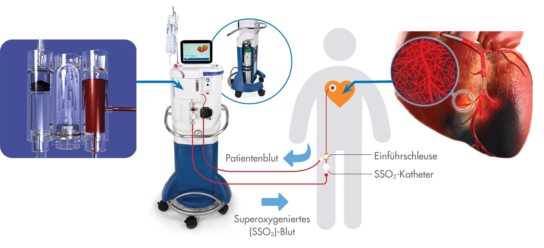 SSO2-Therapie-Verfahren