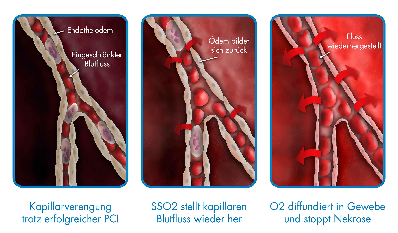 SSO2-Therapie – Dualer Wirkmechanismus