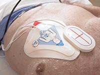 OneStep™-reanimatie-elektroden