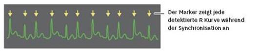 R-Wellen bei den Defibrillatoren der R Serie
