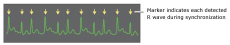 Onda R de cardioversión del desfibrilador