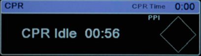 CPR-Pausen-Timer - X Series