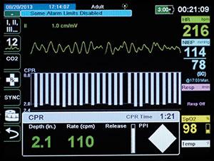 X Series CPR Dashboard screen