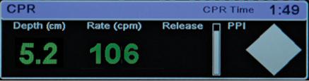 CPR Dashboard - X Series
