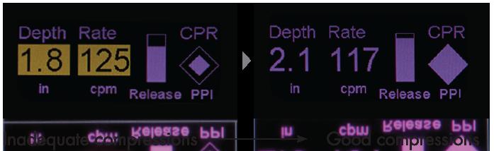 CPR Feedback