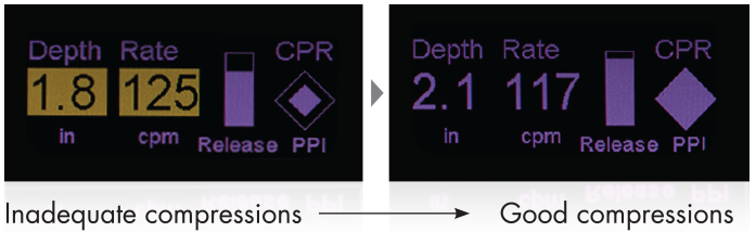 Оценка правильности проведения СЛР