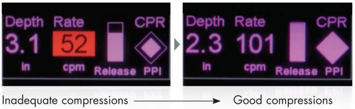 Retroalimentación de RCP