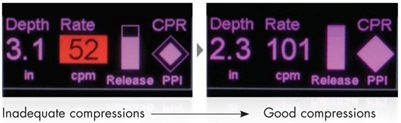 Inadequate versus good compressions on the X Series and R Series