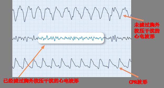 See-thru CPR Waveform - Chinese