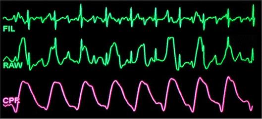 Pulsvorm van See-Thru-reanimatie (CPR)