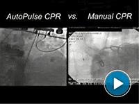 Intervento cardiaco reale in laboratorio di emodinamica