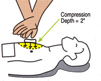 CPR-compressies