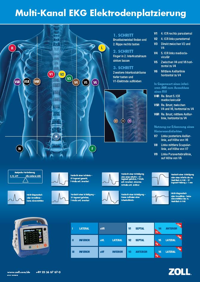 Multi-Kanal EKG Elektrodenplatzierung