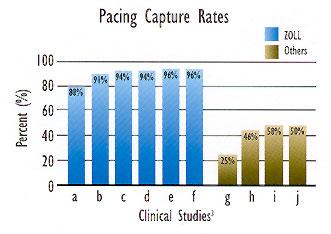 Pacing waveform comparison