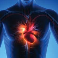 What is myocarditis?