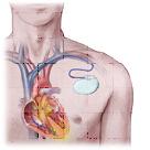 Implantable cardiac defibrillator