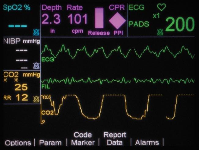 CPR Sensor Real CPR_HelpTimeline