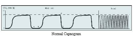 Capnometer